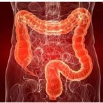 Colitis Ulcerosa: Importancia del tratamiento rectal