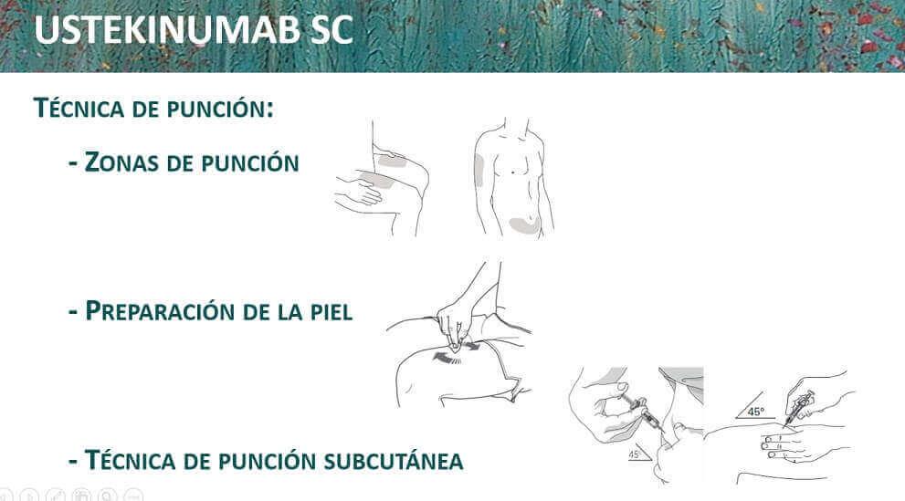 Cómo se administra la jeringa de Stelara